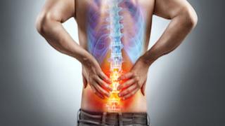 Rückenschmerzen 350x150